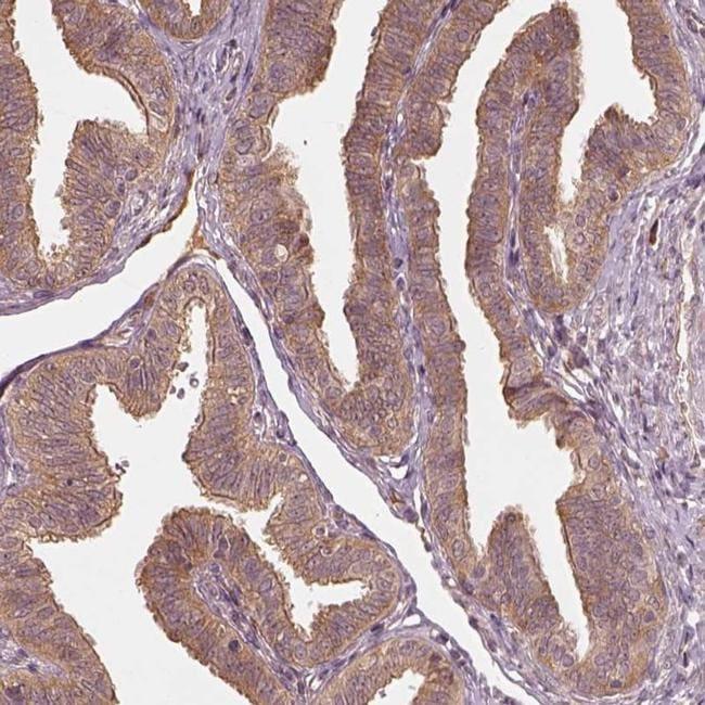 RPS5 Antibody in Immunohistochemistry (IHC)