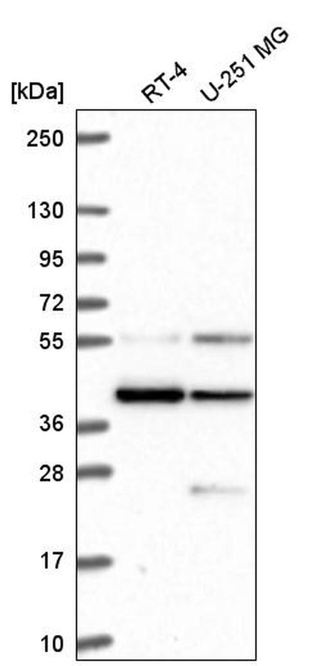 MORF4 Antibody in Western Blot (WB)
