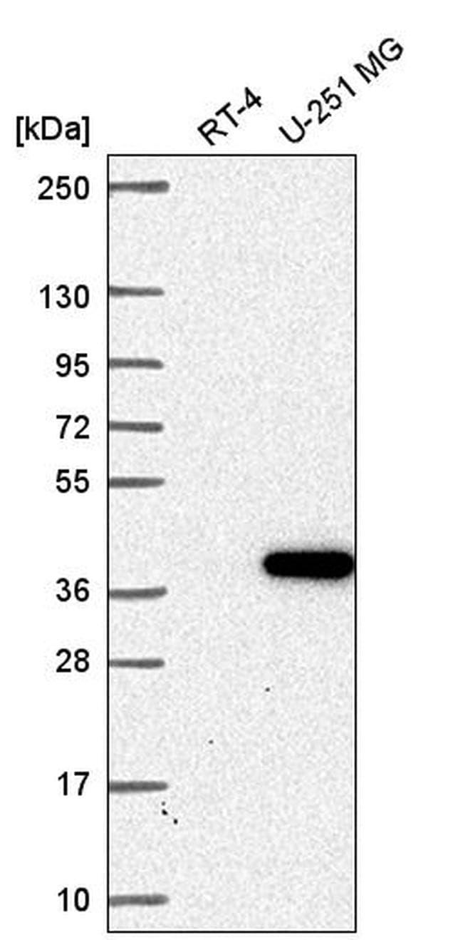 ZNF713 Antibody in Western Blot (WB)