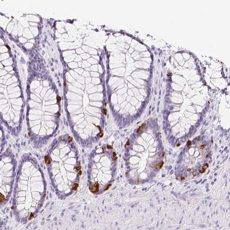 SLC18A1 Antibody in Immunohistochemistry (IHC)