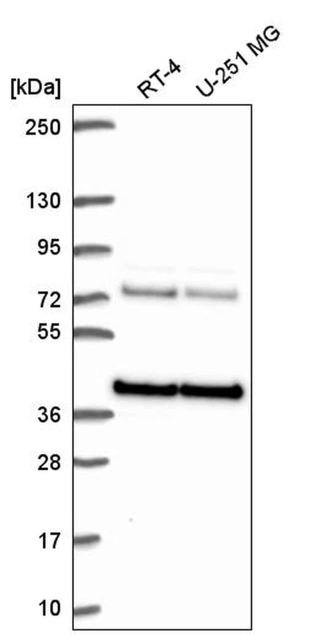 hnRNP A3 Antibody in Western Blot (WB)