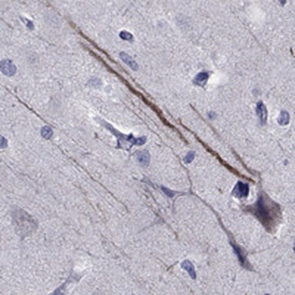 SEMA5B Antibody in Immunohistochemistry (IHC)