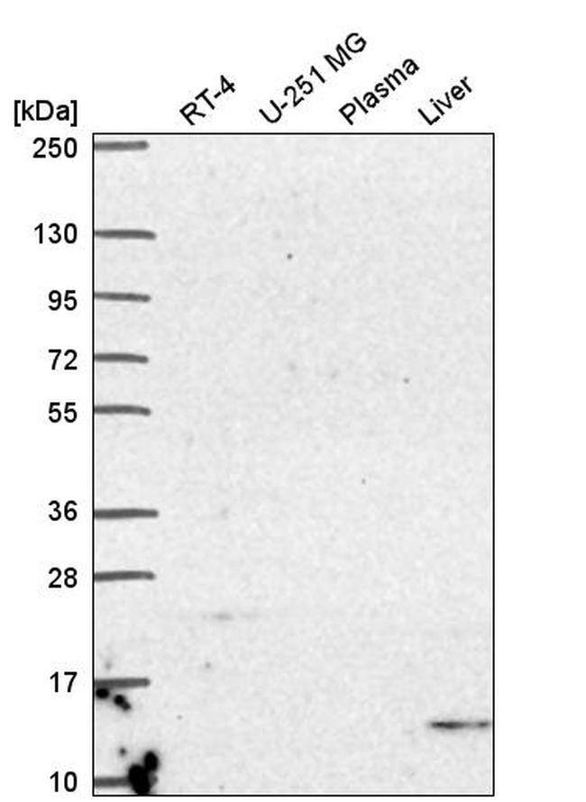 UCN2 Antibody in Western Blot (WB)