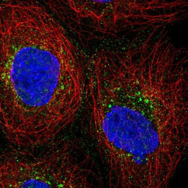 PRPS2 Antibody in Immunocytochemistry (ICC/IF)