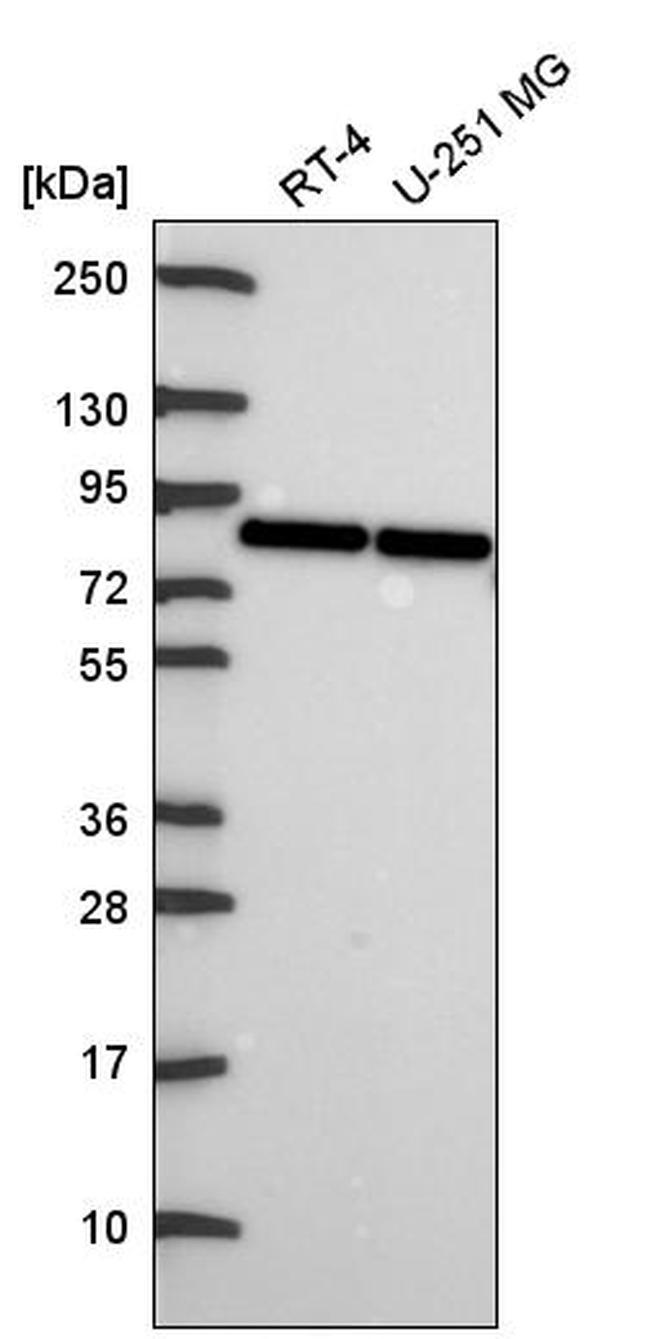 OATP1 Antibody in Western Blot (WB)