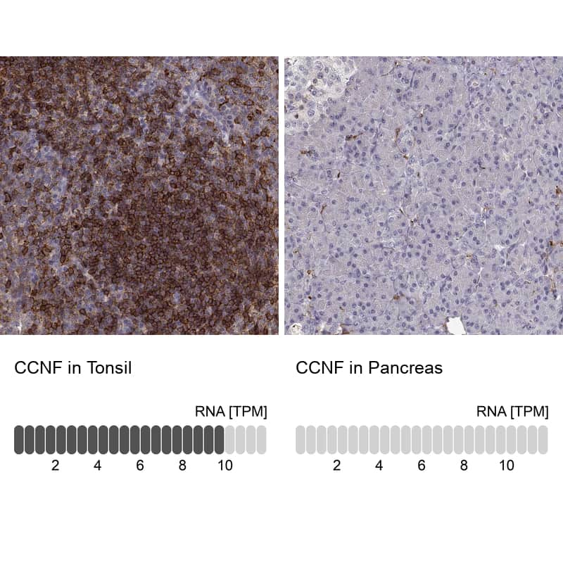 Cyclin F Antibody in Relative expression