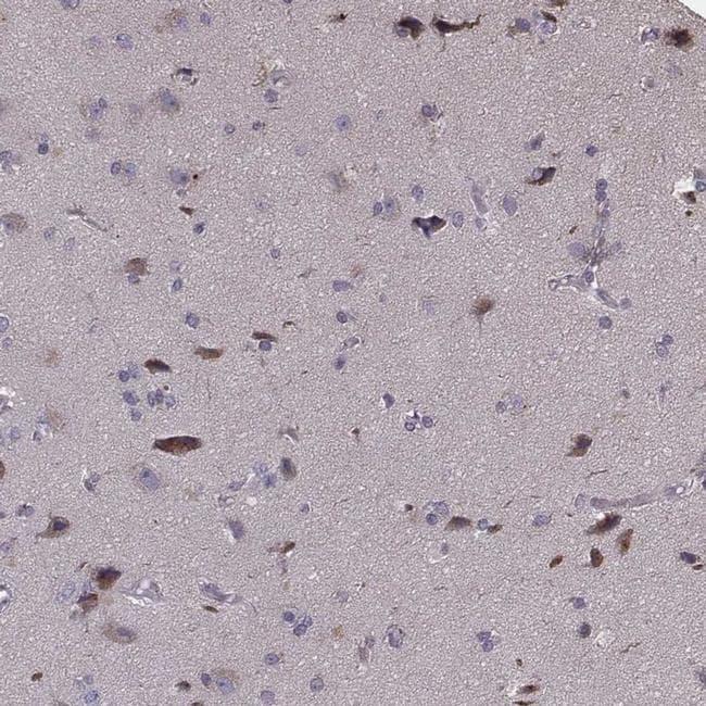 PCDHA4 Antibody in Immunohistochemistry (IHC)