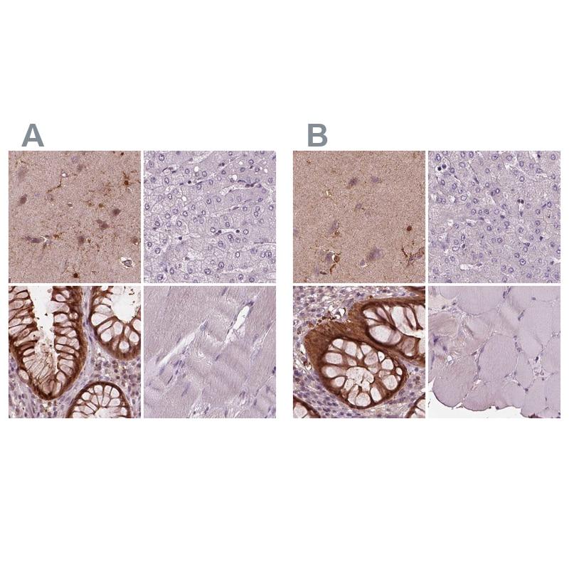 Sorcin Antibody in Immunohistochemistry (IHC)