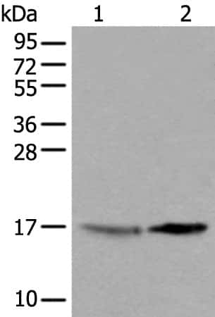 UBE2W Antibody in Western Blot (WB)