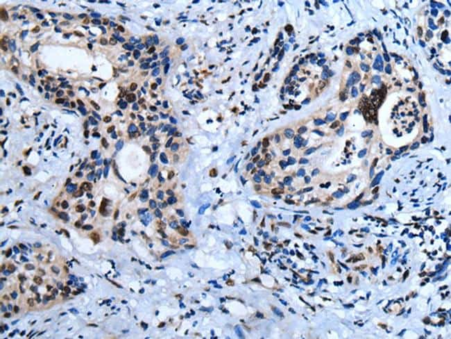 HOXD10 Antibody in Immunohistochemistry (Paraffin) (IHC (P))