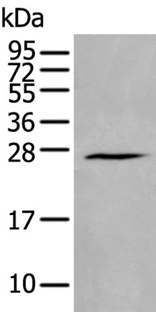 HAND1 Antibody in Western Blot (WB)