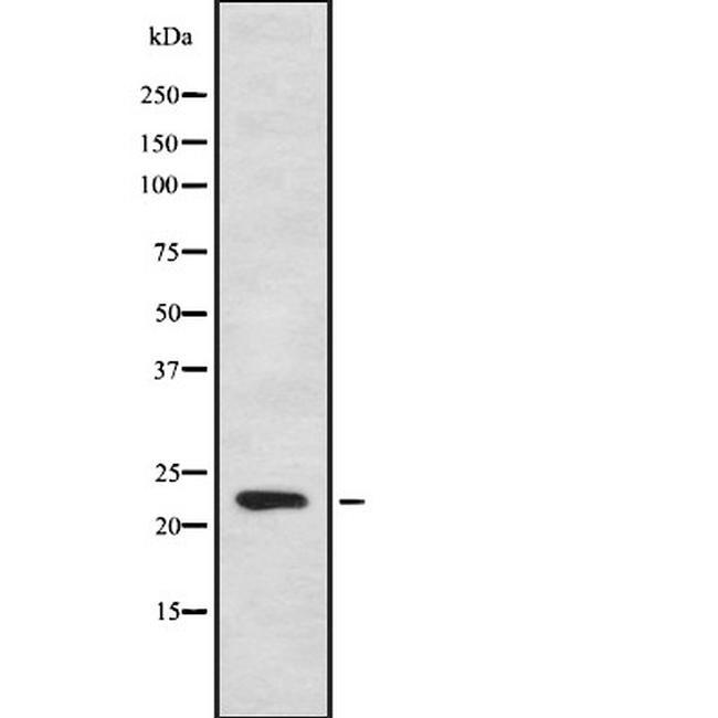 CYB561D1 Antibody in Western Blot (WB)