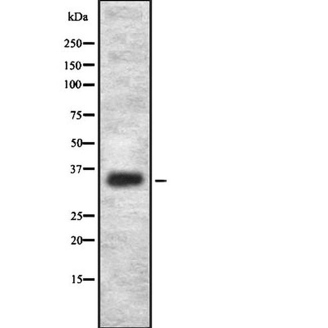 OR2L2 Antibody in Western Blot (WB)