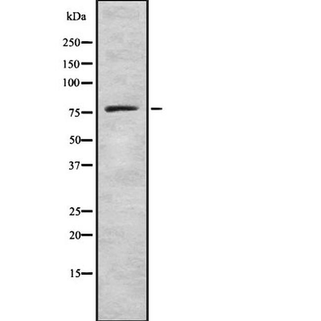 GUCY1A1 Antibody in Western Blot (WB)