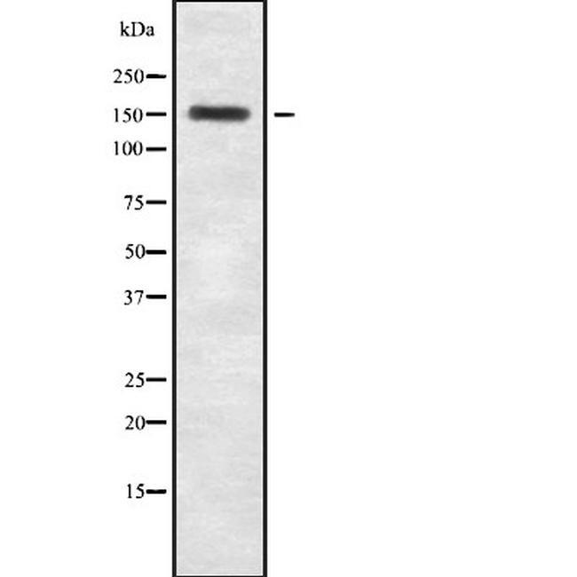 TENC1 Antibody in Western Blot (WB)