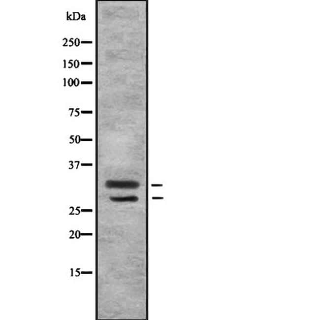 MSX1/MSX2 Antibody in Western Blot (WB)