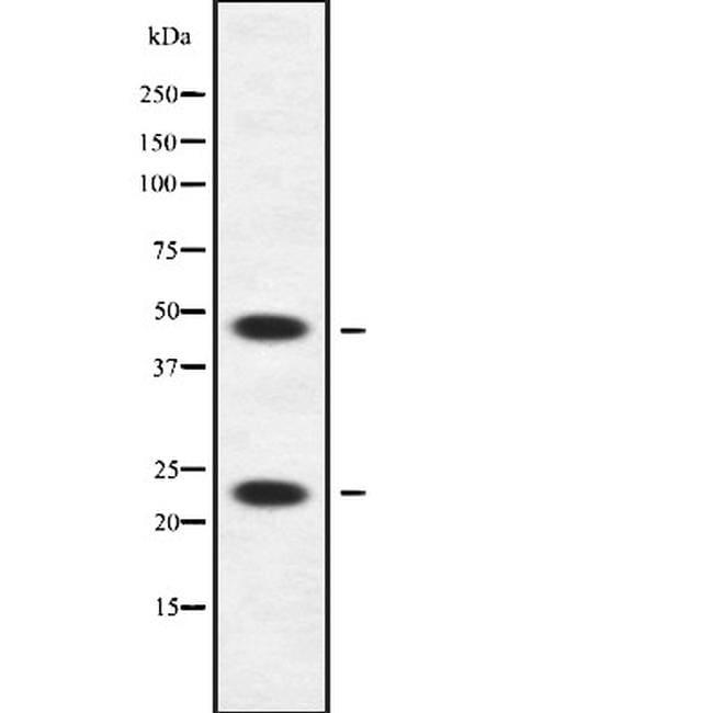 APOBEC3A/APOBEC3B Antibody in Western Blot (WB)