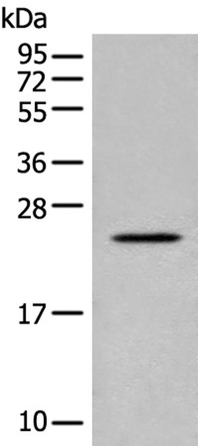 COP1 Antibody in Western Blot (WB)