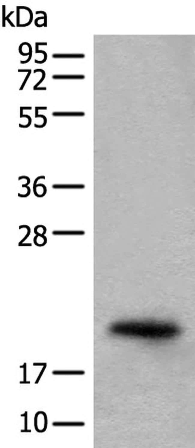 CRYGS Antibody in Western Blot (WB)