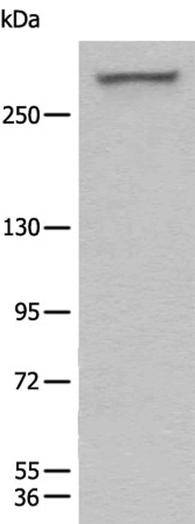 WDFY3 Antibody in Western Blot (WB)