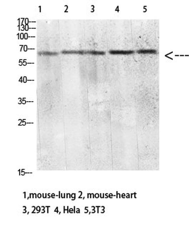 CD299 (DC-SIGN/L) Antibody in Western Blot (WB)