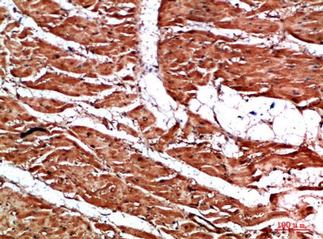 Titin Antibody in Immunohistochemistry (Paraffin) (IHC (P))