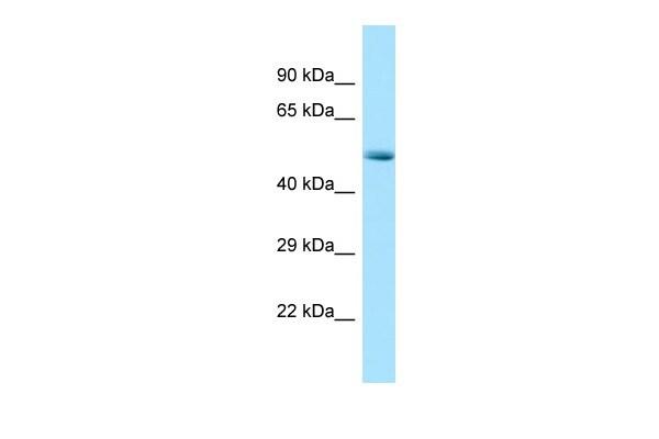 CDK8 Antibody in Western Blot (WB)