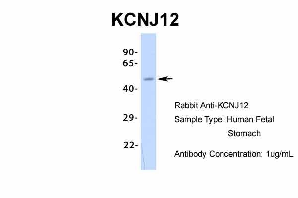 Kir2.2 (KCNJ12) Antibody in Western Blot (WB)