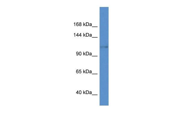 KCNH8 Antibody in Western Blot (WB)