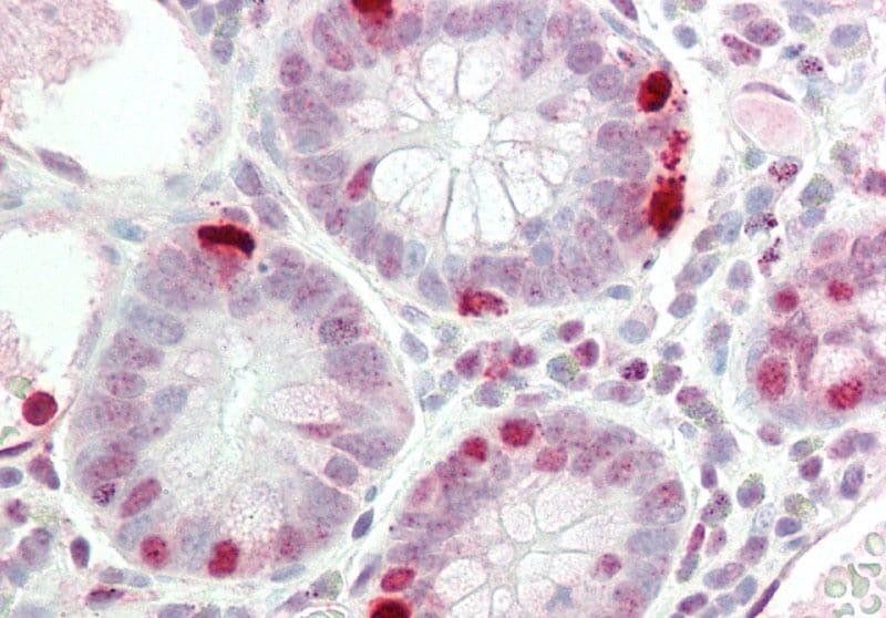 RAPGEF2 Antibody in Immunohistochemistry (Paraffin) (IHC (P))