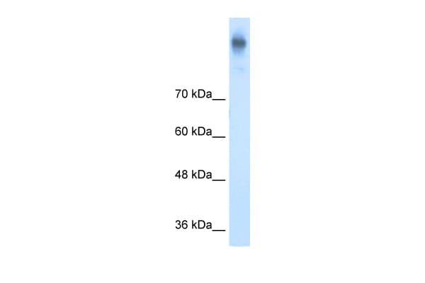 NKCC1 Antibody in Western Blot (WB)