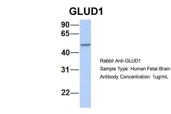 GluD1 Antibody in Western Blot (WB)
