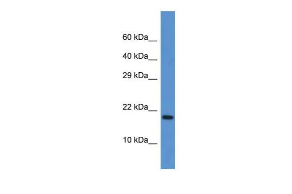 FXN Antibody in Western Blot (WB)