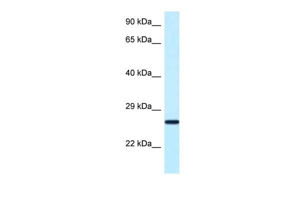 NUDT16 Antibody in Western Blot (WB)