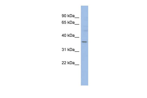 HMGCLL1 Antibody in Western Blot (WB)