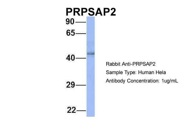 PRPSAP2 Antibody in Western Blot (WB)