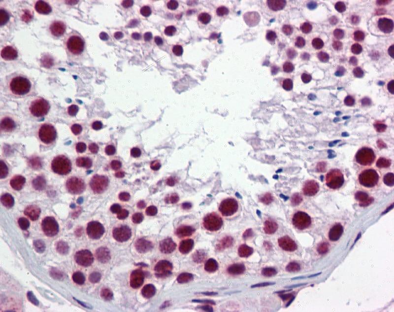 hnRNP H1 Antibody in Immunohistochemistry (IHC)