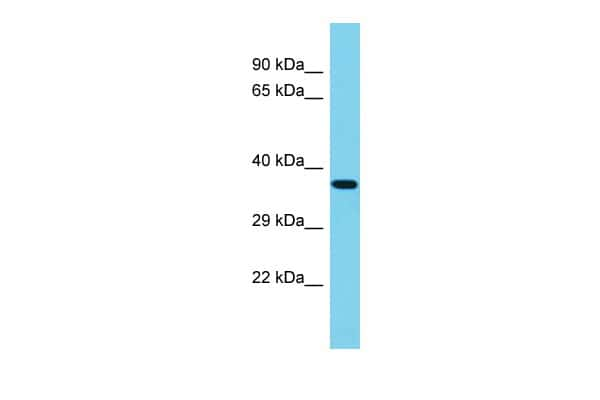 PIP5K1A Antibody in Western Blot (WB)