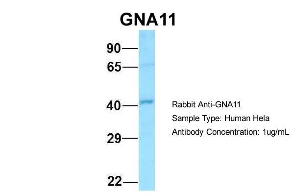 GNA11 Antibody in Western Blot (WB)