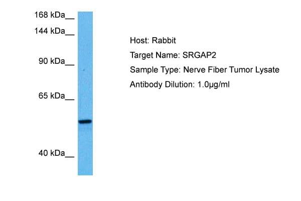 SRGAP2 Antibody in Western Blot (WB)