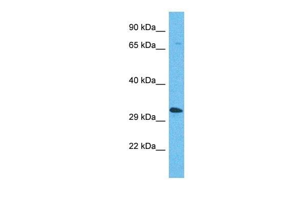OR5AP2 Antibody in Western Blot (WB)