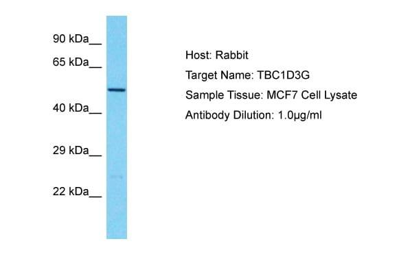 TBC1D3C Antibody in Western Blot (WB)