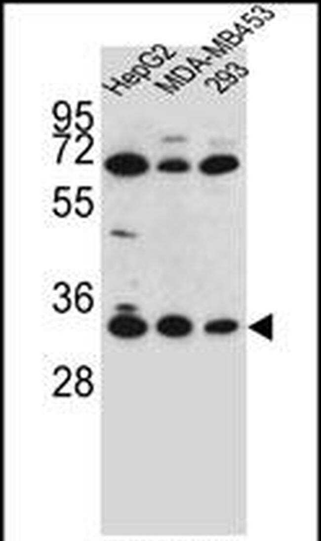 OR2T3 Antibody in Western Blot (WB)