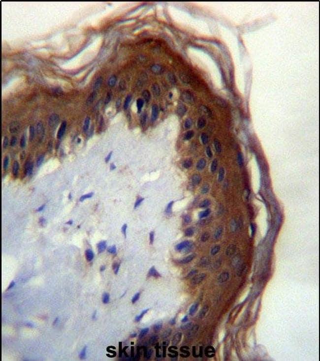 LIPM Antibody in Immunohistochemistry (IHC)