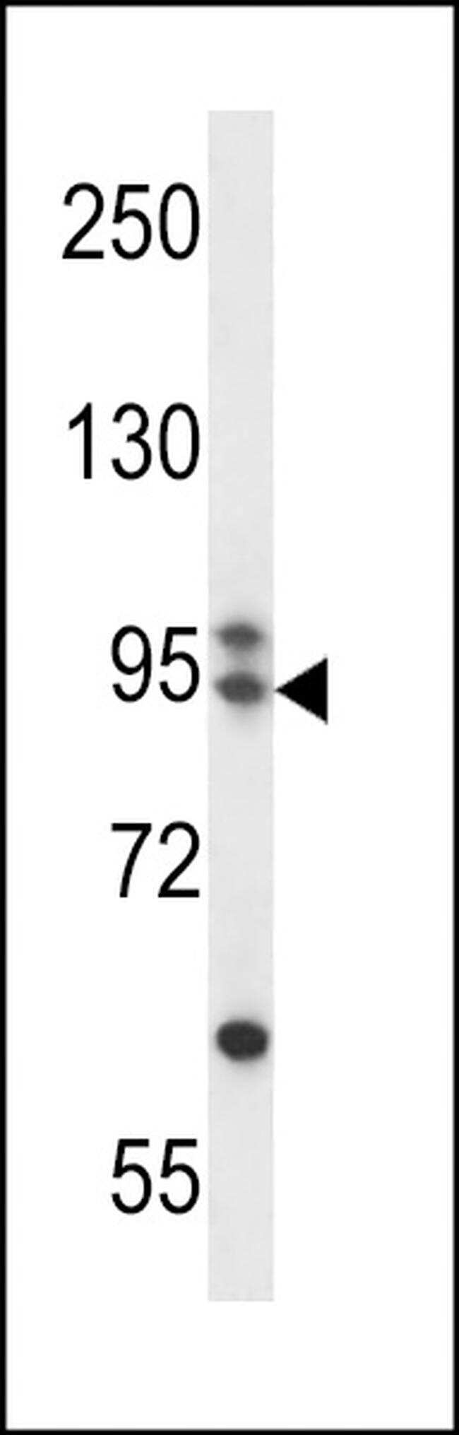 ARMC9 Antibody in Western Blot (WB)