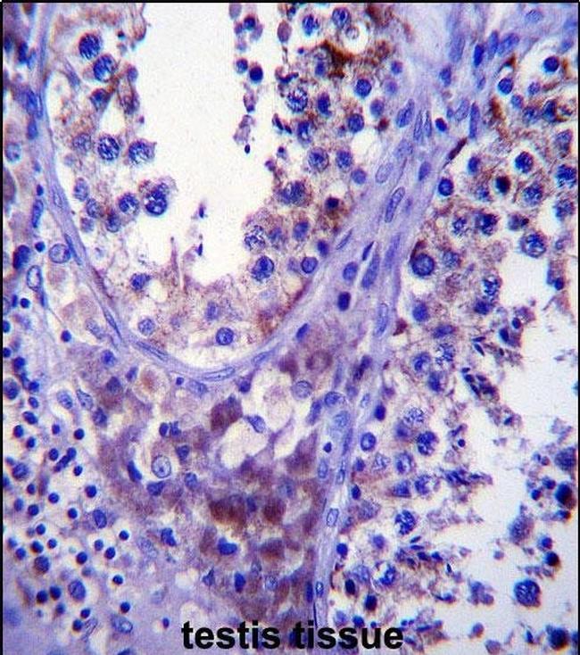 SDF2L1 Antibody in Immunohistochemistry (IHC)