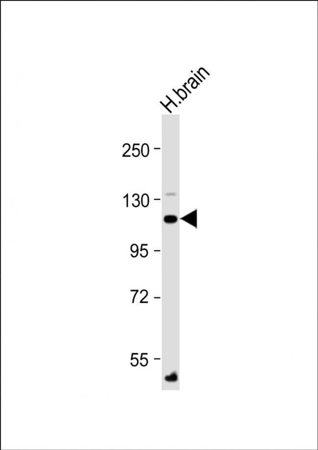 ATP1A4 Antibody in Western Blot (WB)
