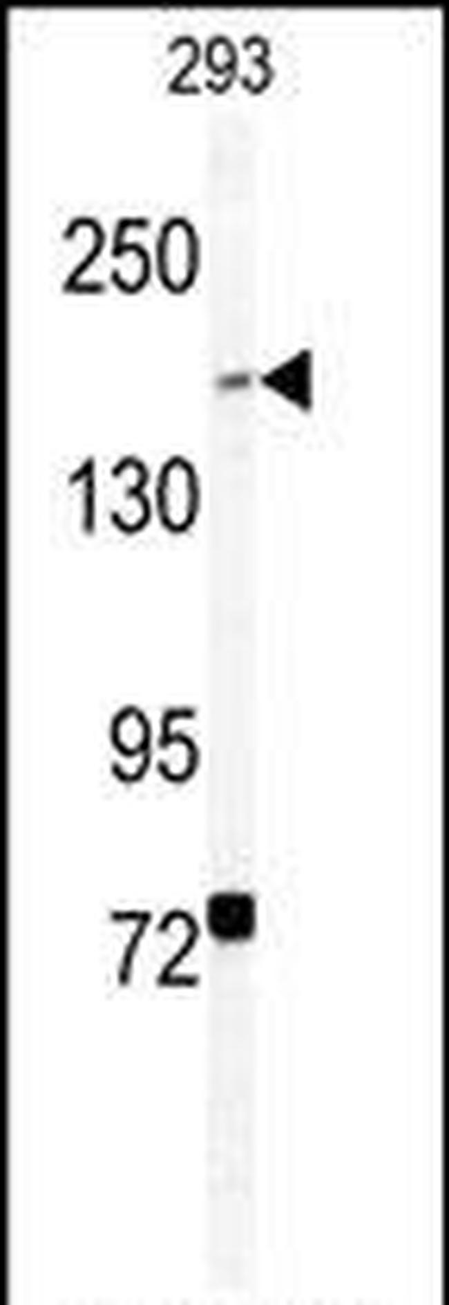 BCOR Antibody in Western Blot (WB)