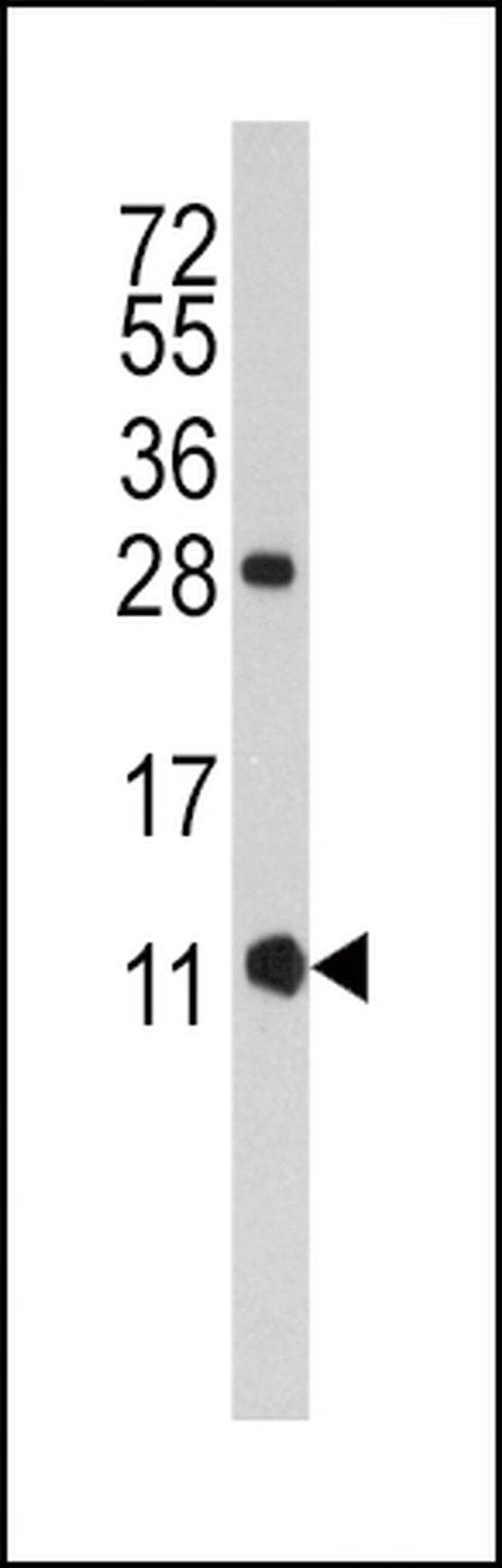 FKBP1B Antibody in Western Blot (WB)