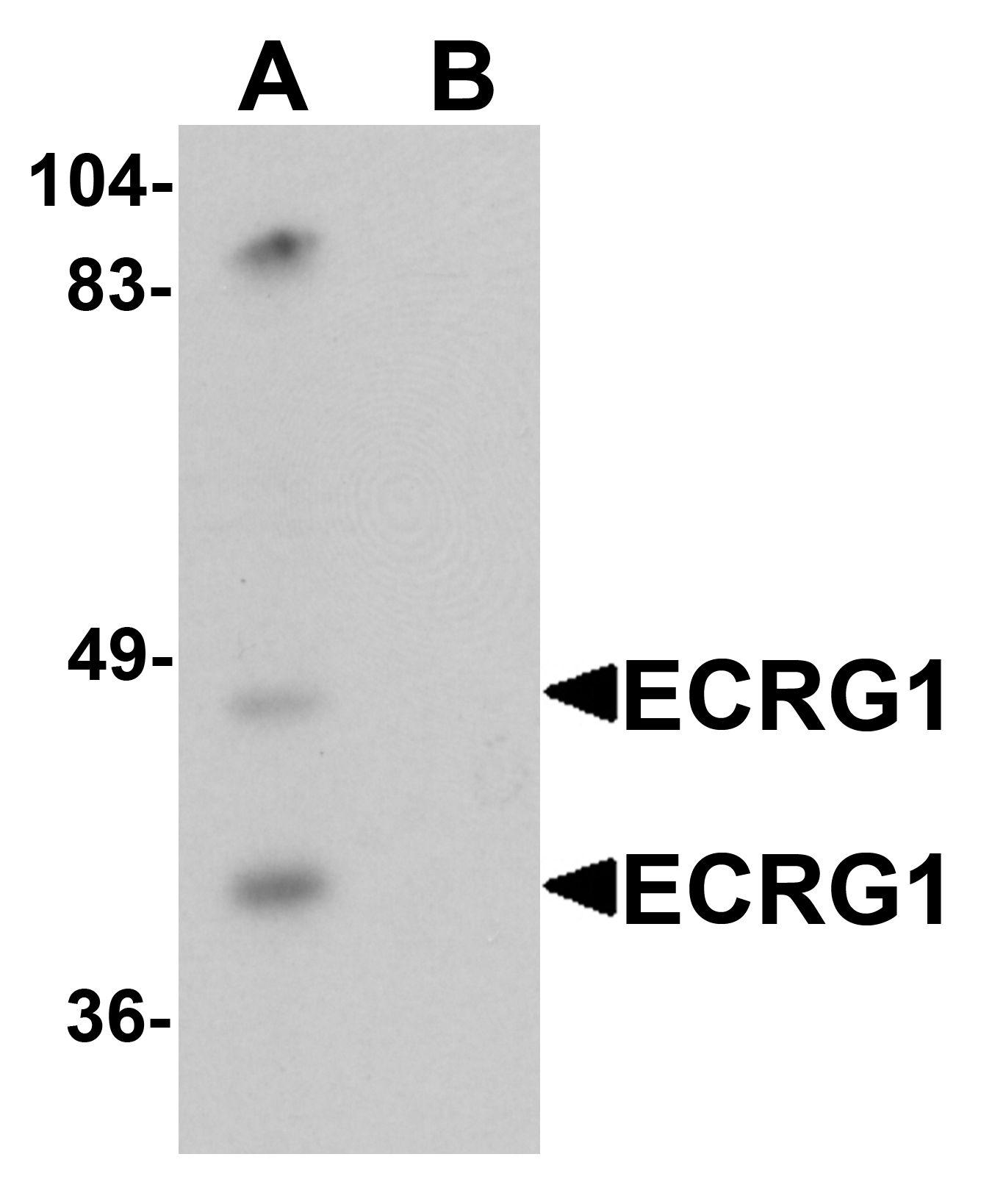 TMPRSS11A Antibody in Western Blot (WB)